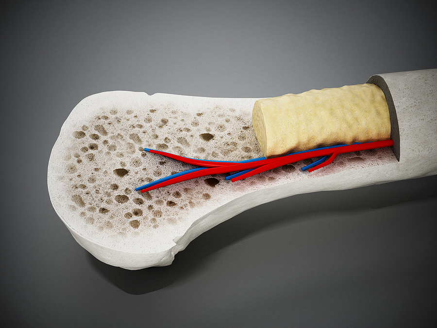 Cross section of a bone showing yellow bone marrow